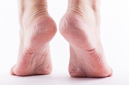 Aloe Vera for cracked heels